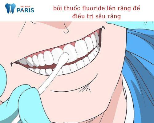 lỗ sâu răng nhỏ