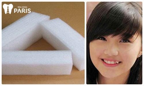 cách làm răng khểnh tại nhà