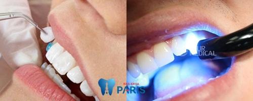 Cách tạo răng khểnh tự nhiên