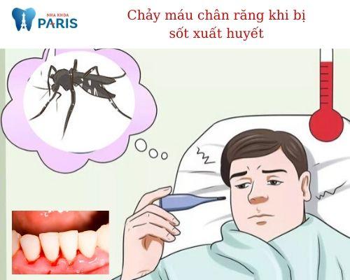chảy máu chân răng khi bị sốt xuất huyết