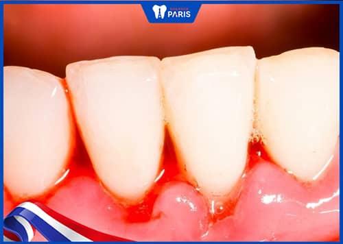 Chảy máu chân răng là dấu hiệu khi bị tụt nướu