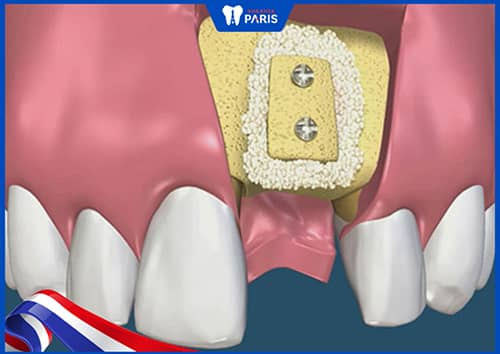 Điều trị tụt lợi chân răng nặng bằng cách ghép xương răng