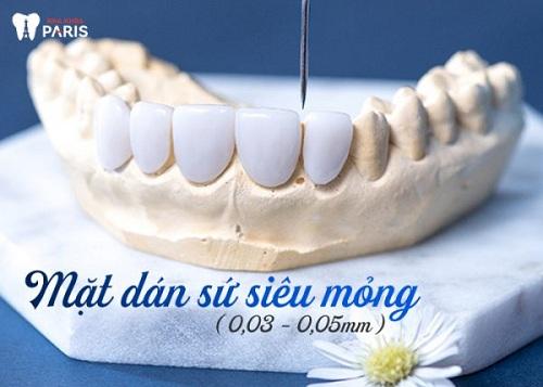 Giá phủ răng sứ nano