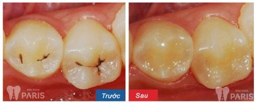 răng bị thủng lỗ nhỏ