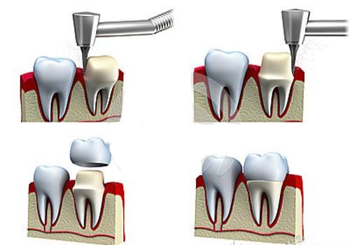 Kỹ thuật mài cùi răng sứ