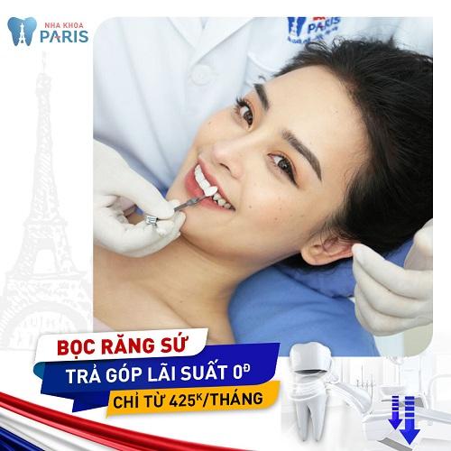 làm răng sứ trả góp tphcm và hà nội