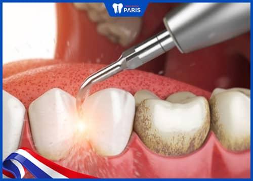 Lấy cao răng - Biện pháp nâng cao hiệu quả cho cách trị hôi miệng tại nhà