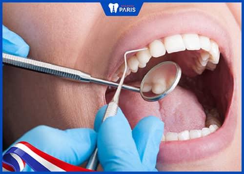 Điều trị tụt lợi chân răng nặng bằng cách lấy cao răng