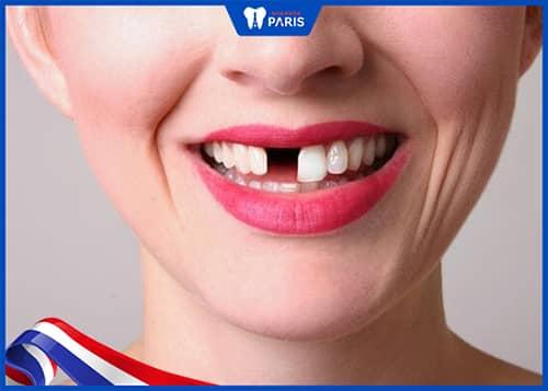 Bị tụt lợi chân răng khiến mất răng