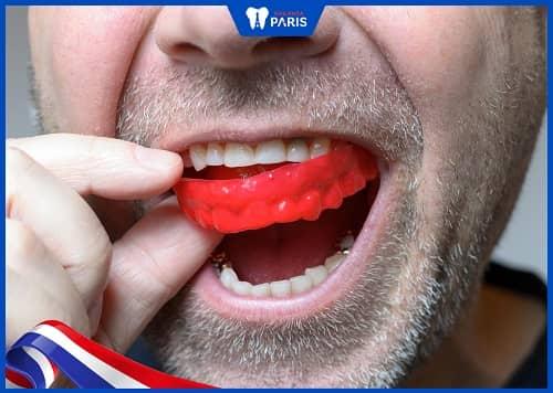 dùng miếng bảo vệ răng khi nào