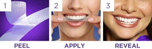 Cách dùng miếng dán trắng răng đúng cách