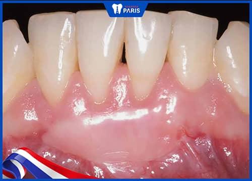 Điều trị tụt lợi chân răng nặng bằng cách ghép mô mềm
