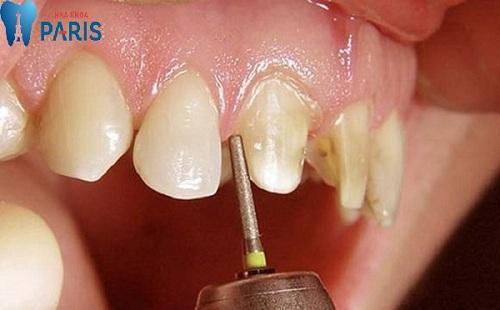 phương pháp mài cùi răng cửa