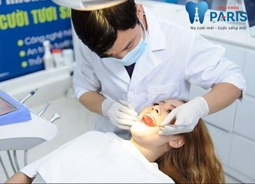 quá trình bọc răng sứ