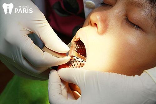 Quy trình bọc răng sứ như thế nào