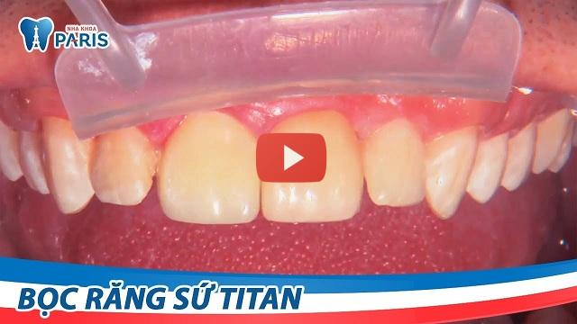 Quy trình bọc răng sứ tại Paris