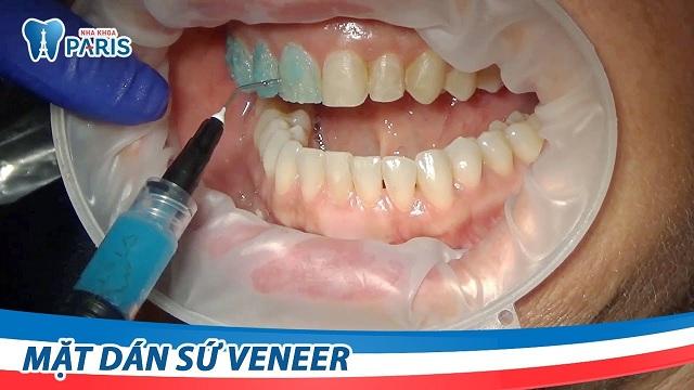 Quy trình phủ răng sứ