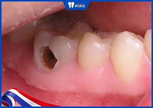 răng hàm bị thủng lỗ