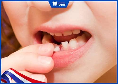 mất răng là dấu hiệu khi bị tụt nướu