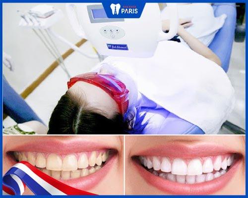 Răng bị nhiễm Tetracycline có tẩy trắng được không?