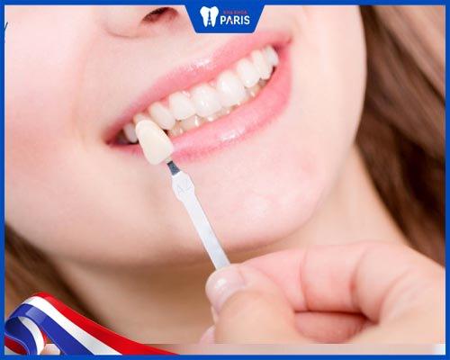 Cách điều trị răng nhiễm Tetracycline nặng
