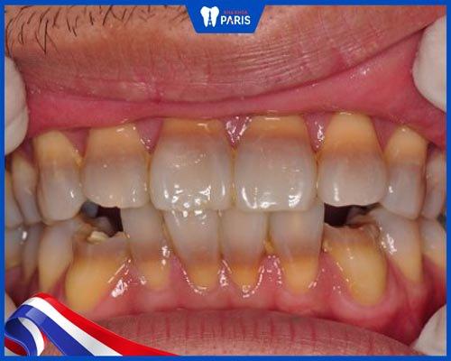 răng nhiễm tetracycline là gì?