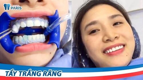 răng nhiễm fluor có tẩy trắng được không