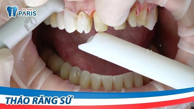 Tháo phủ sứ răng