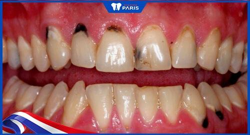 Tại sao kẽ răng bị đen?