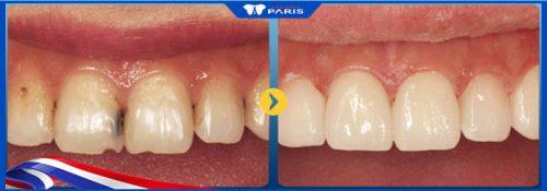 Trám kẽ răng bị đen với răng cửa