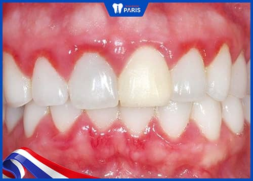 Bị tụt lợi chân răng do viêm lợi
