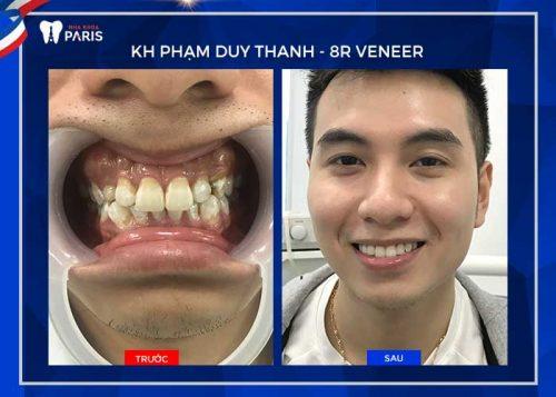 cách cười đẹp cho người răng hô