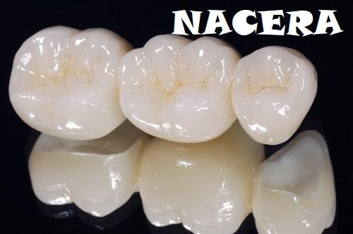 Bảng giá răng nacera