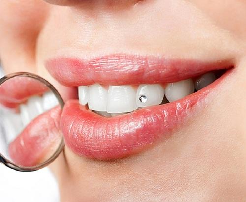 bảng giá răng sứ diamond