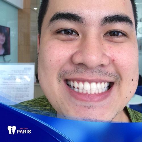 bọc răng sứ diamond tại nha khoa Paris