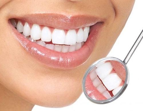 Bọc răng toàn sứ nacera germany