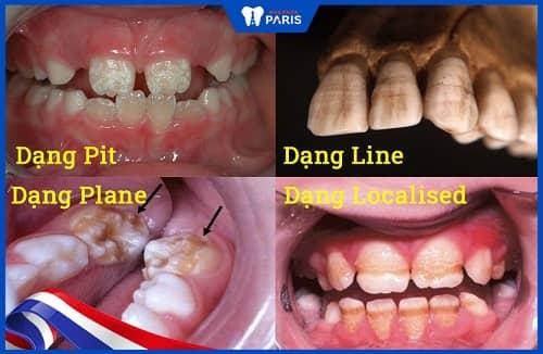 các dạng thiểu sản men răng