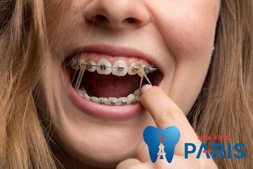 thun liên hàm niềng răng