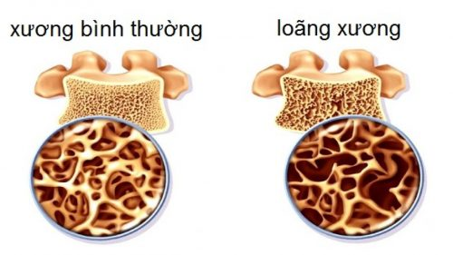 cách làm răng chắc khỏe khi bị lung lay