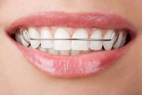 cách làm chắc răng