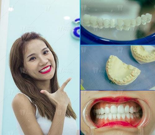 có nên bọc răng sứ hay không