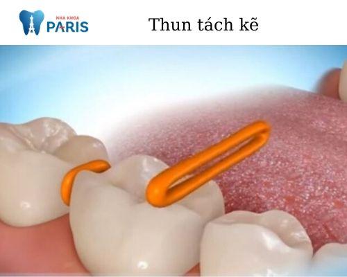 bộ phận niềng răng phổ biến thun tách kẽ