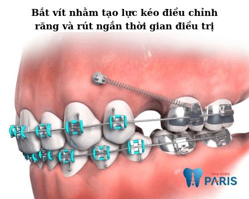 dụng cụ niềng răng minivis