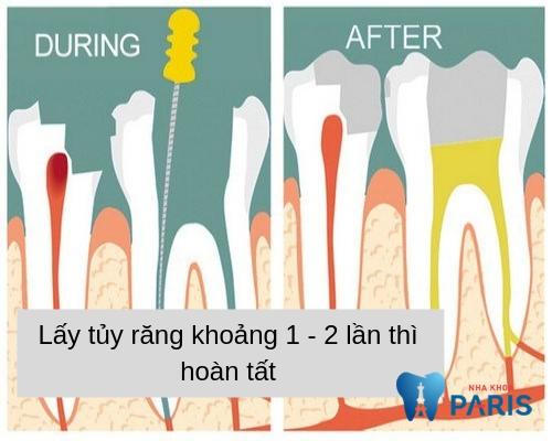 lấy tủy răng mấy lần