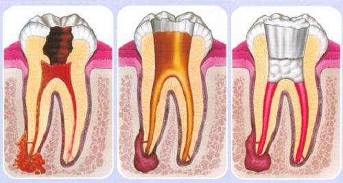 chữa tuỷ răng bao lâu thì hết đau