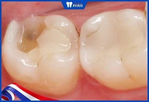 chữa tủy răng rồi vẫn đau