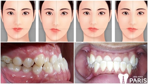 răng mọc lệch hàm trên