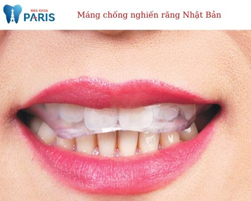 Máng chống nghiến răng Nhật Bản to – plan