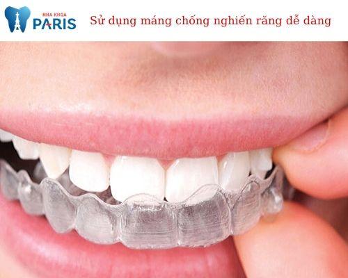 Cách sử dụng máng chống nghiến răng khi ngủ