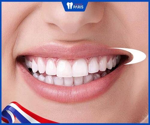 răng sứ nacera tương thích sinh học